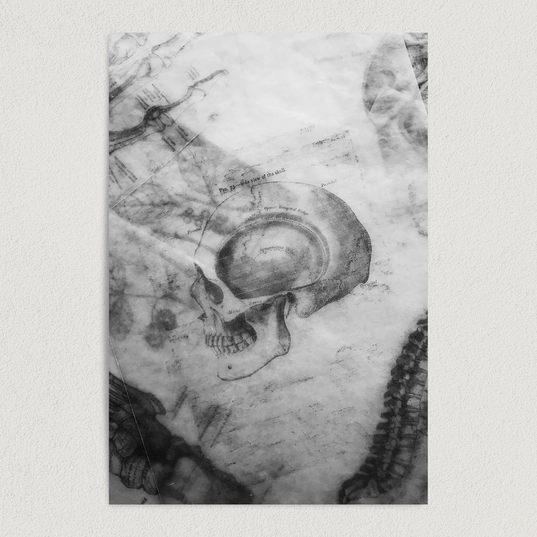 Skull X-Ray Art Print Poster 12″ x 18″ Wall Art MD1000